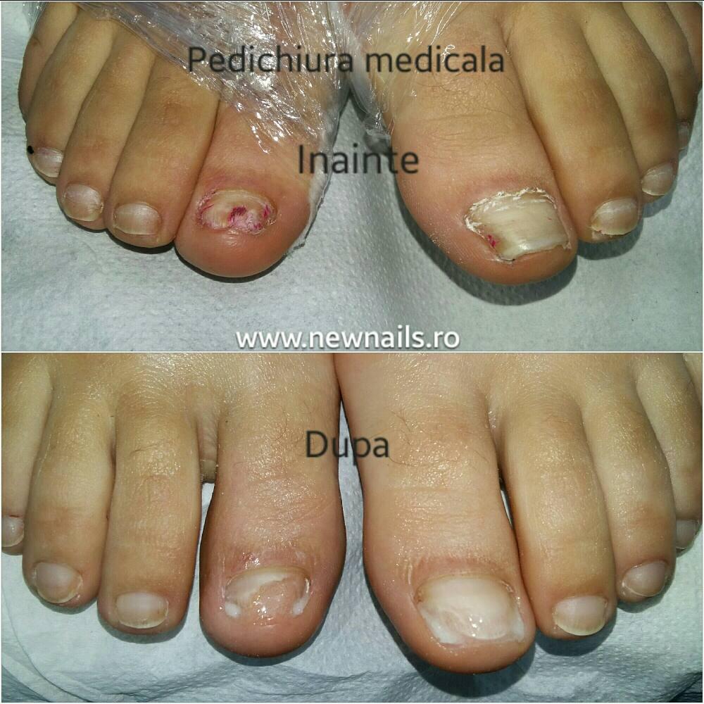tratament micoze unghii